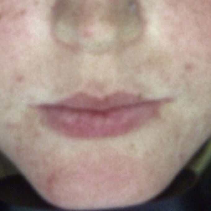 Acne treatment - after UV light