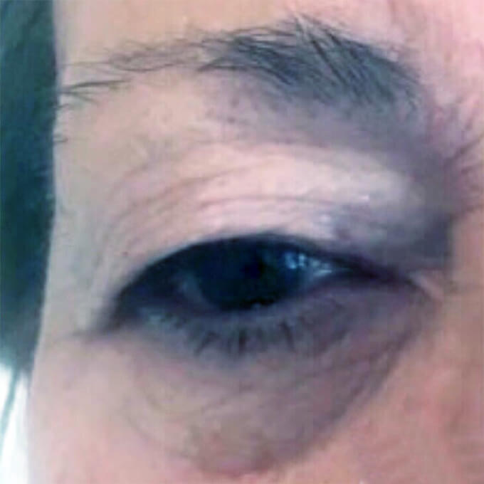Hooded eye - before treatment